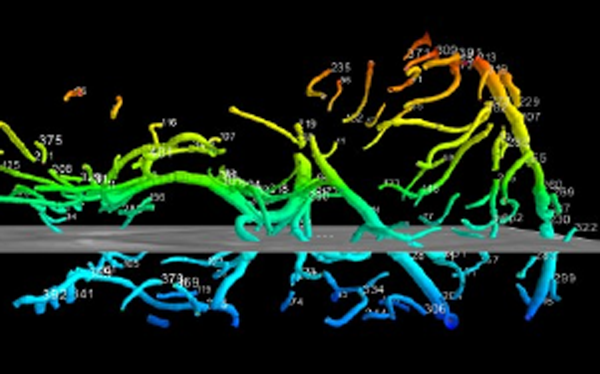Numerical modeling of the cerebral arterial and venous blood-vessel system in macro- and mesoscale based on 3D MRI data